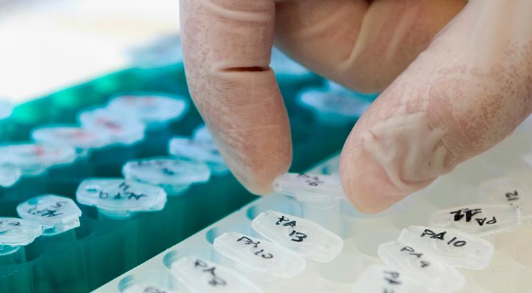 España supera la media europea en ensayos clínicos en oncología