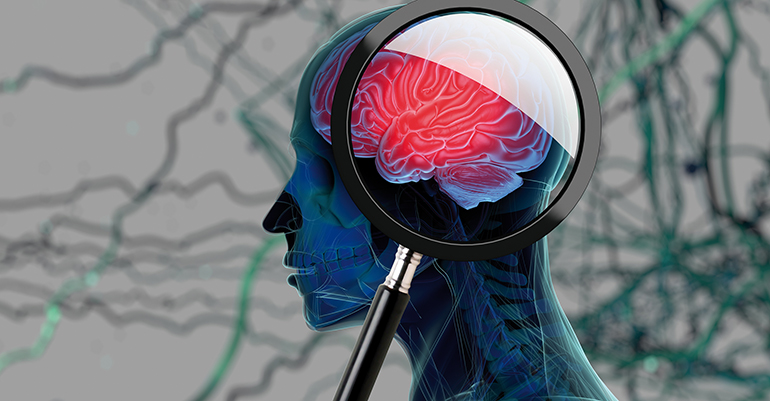 El Big Data facilita la detección precoz de Alzheimer